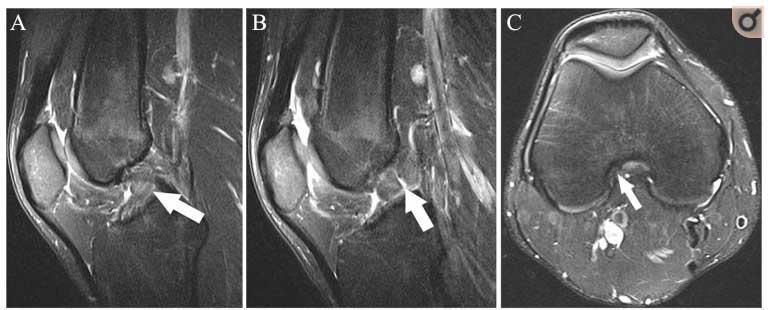 risonanza-magnetica-ginocchio