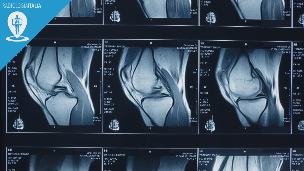 risonanza magnetica ginocchio come si esegue