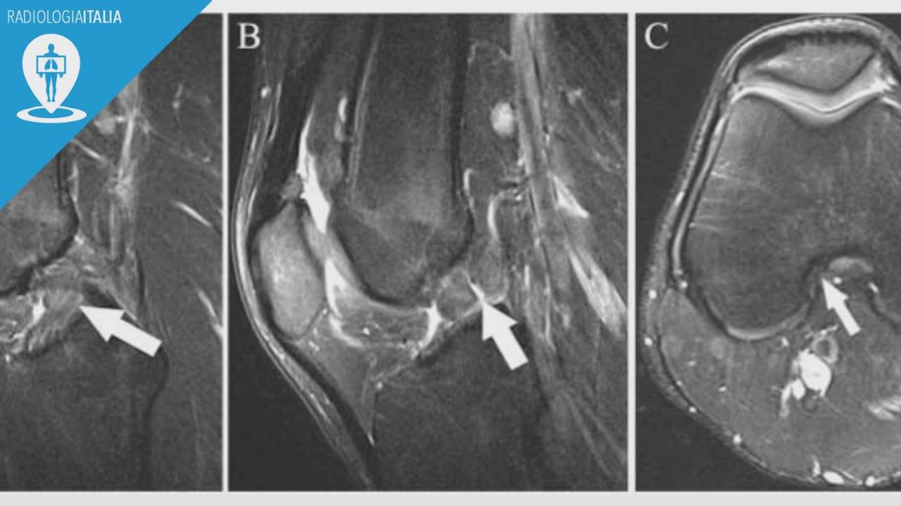 risonanza magnetica ginocchio quado eseguirla