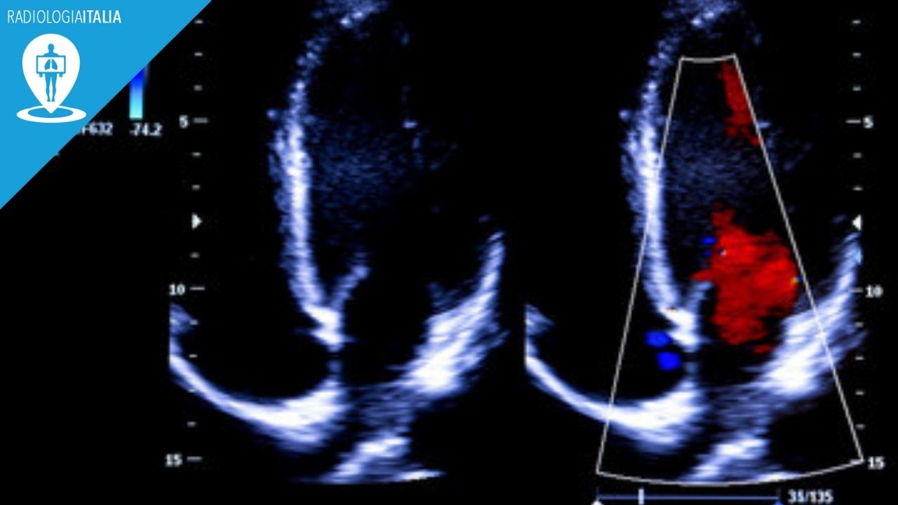 ecocardiogramma e morfologia coronarica