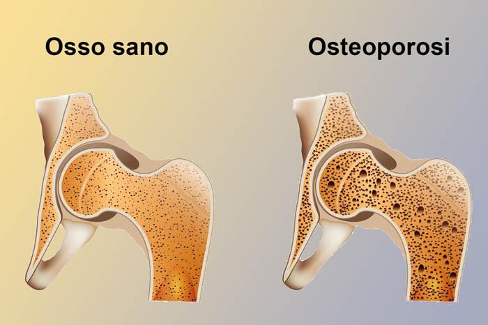 densitometria osteoporosi