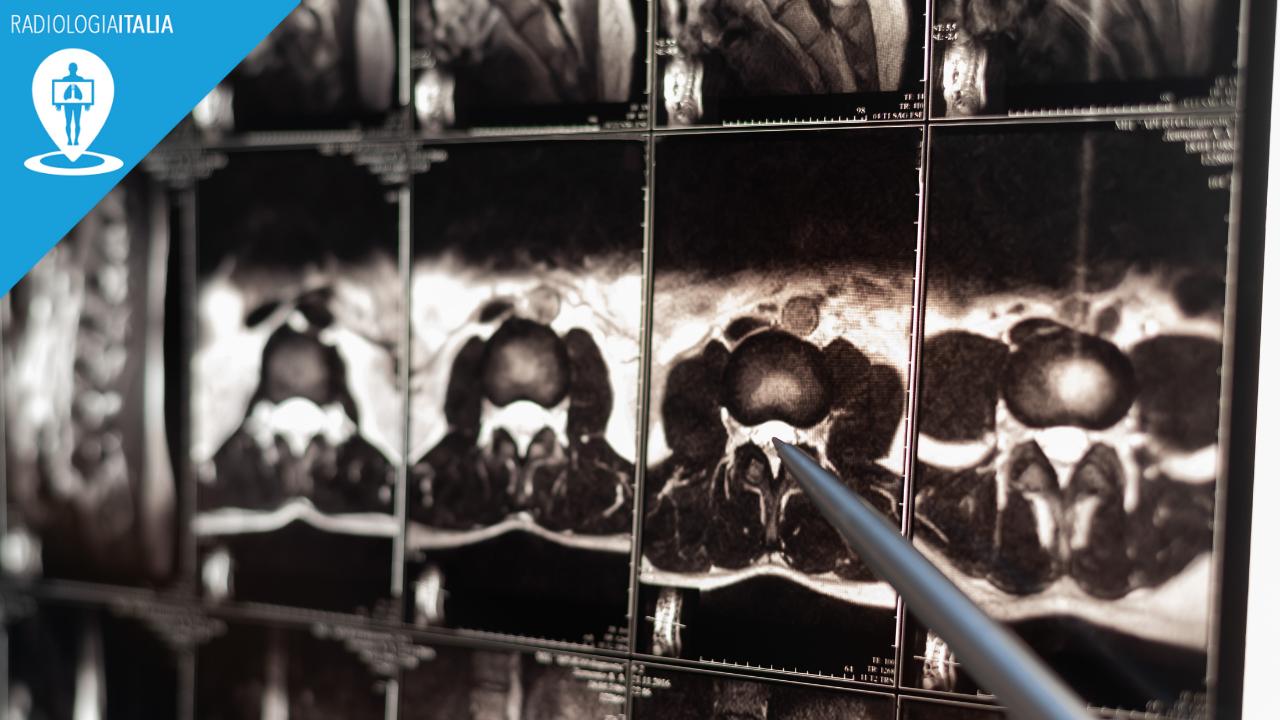 risonanza magnetica lombare